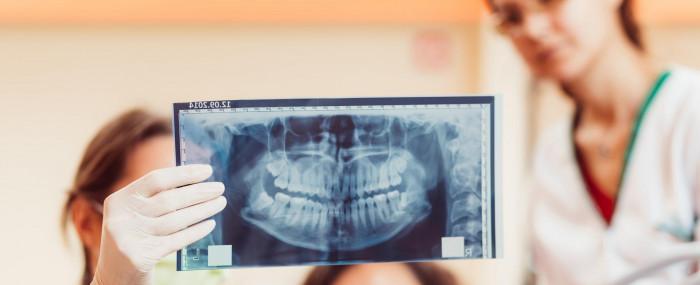 4 dicas para se tornar um bom auxiliar de Radiologia Odontológica