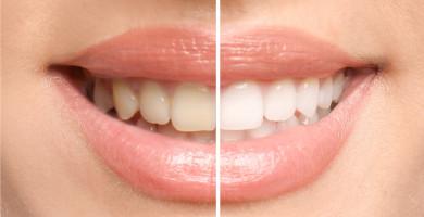 Clareamento Dental: 3 métodos que realmente funcionam!