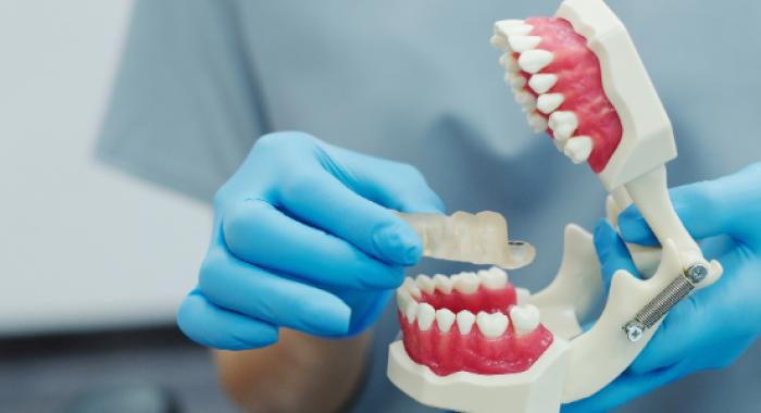 Dicas para armazenar próteses dentárias da maneira correta