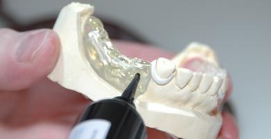 Prótese Dentária: Conheça a diferença entre a prótese total e o protocolo