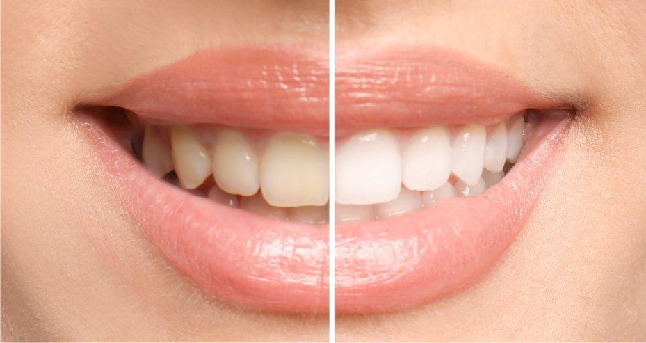 sorriso- com-dentes-amarelados-dentes-brancos
